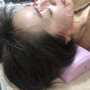 大和町だるま整骨院の美容鍼について